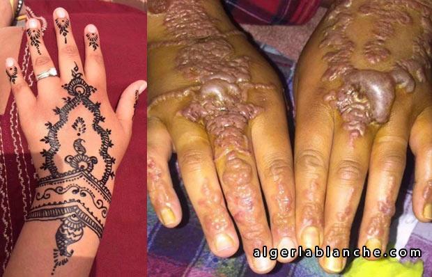 maroc la henn noir provoque des br lures et des cicatrices alger la blanche le portail de. Black Bedroom Furniture Sets. Home Design Ideas